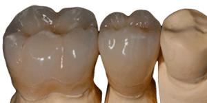 Ästhetischer festsitzender Zahnersatz